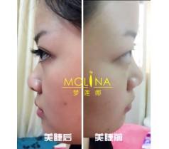 珠海梦莲娜韩式3D美睫课程